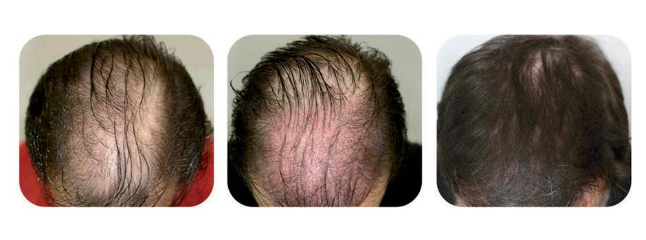 زراعة الشعر فی شیراز